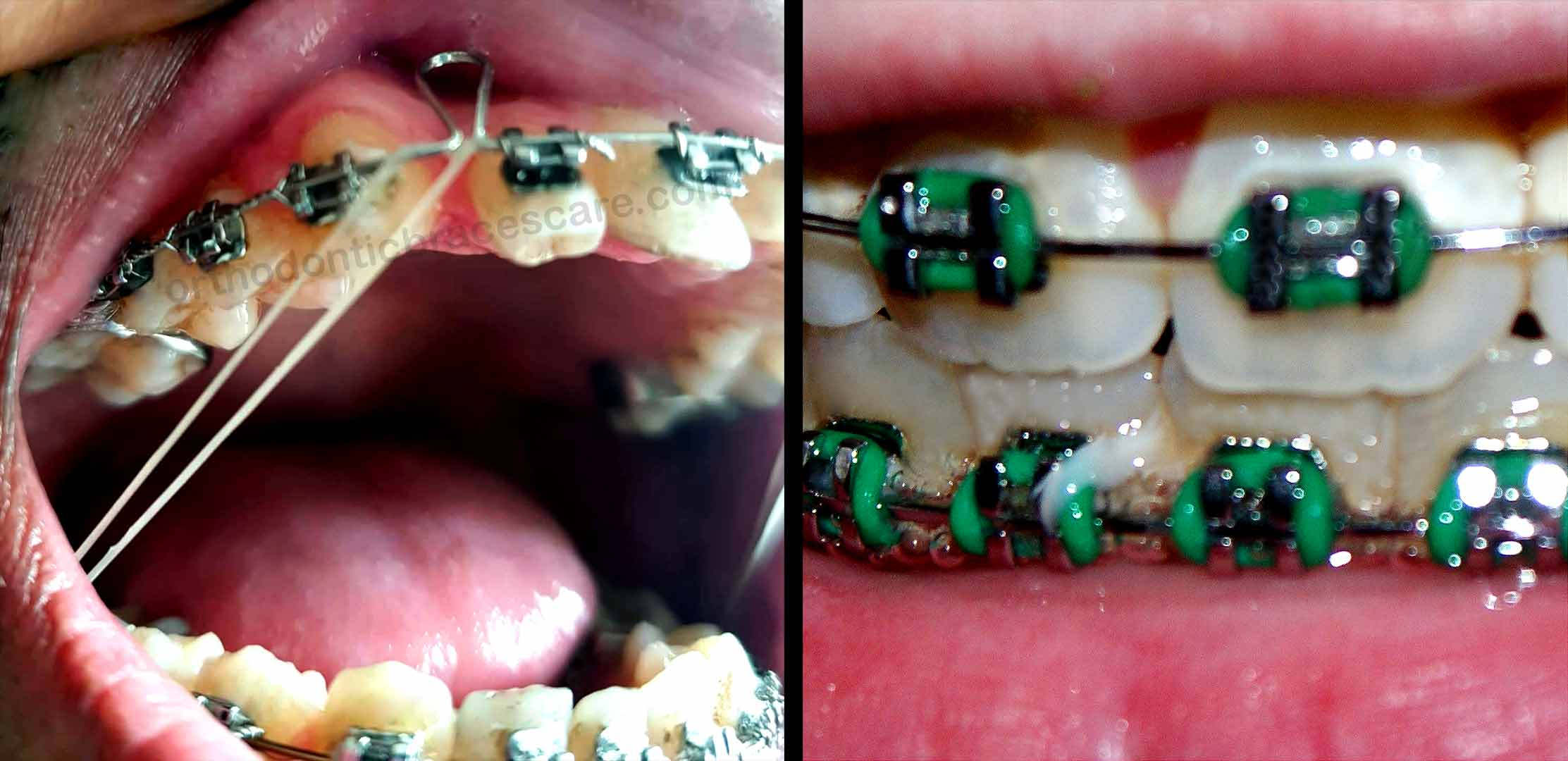 How Long Do You Have To Wear Rubber Bands For Braces Orthodontic