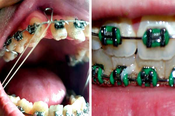Braces Rubber Band Featured