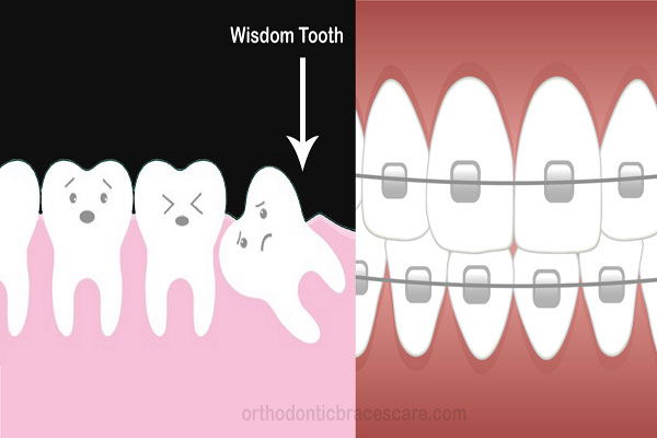 Braces and Wisdom Teeth Featured