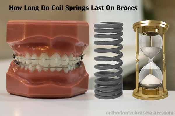 How Long Do Coil Springs Braces Last