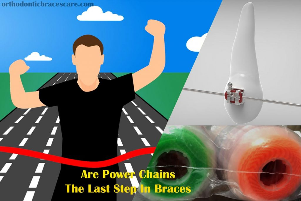 Are Power Chains The Last Step In Braces