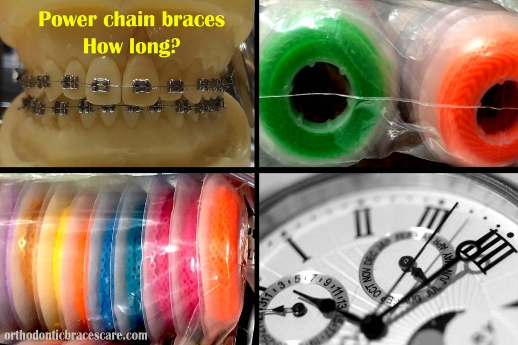 Power chain braces how long to close gap