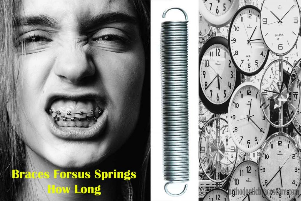 how long do you wear braces forsus springs