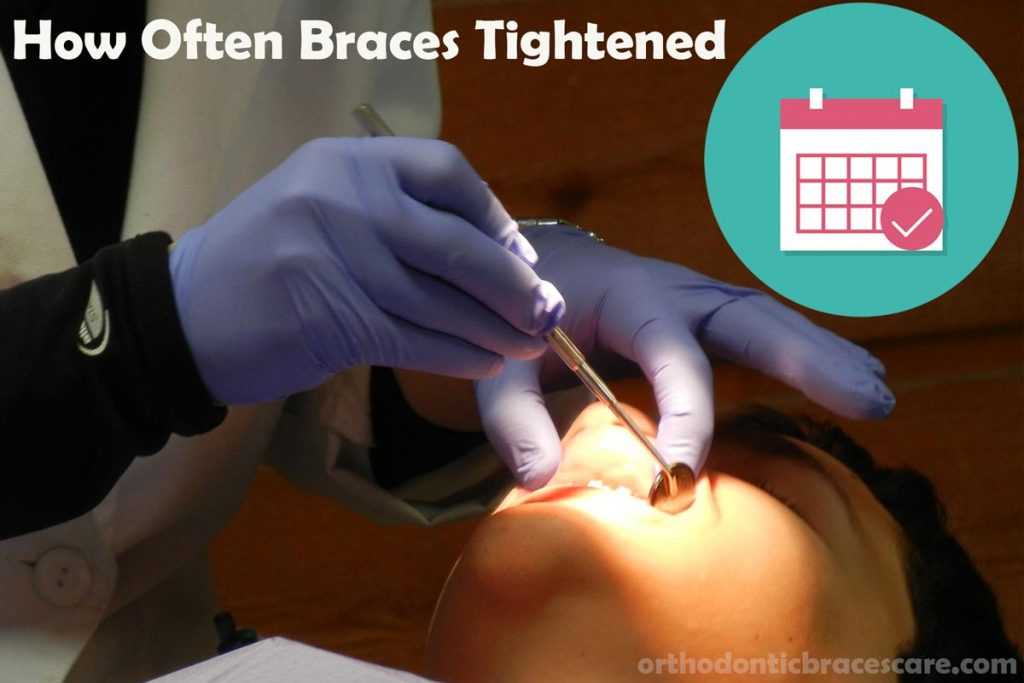 how often braces tightened