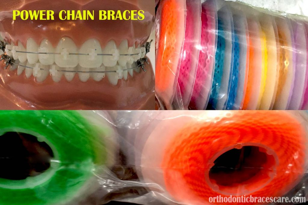 Power chains for braces: Colors, purpose and types