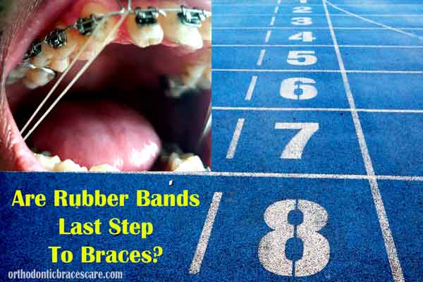 Are Rubber Bands Last Step To Braces