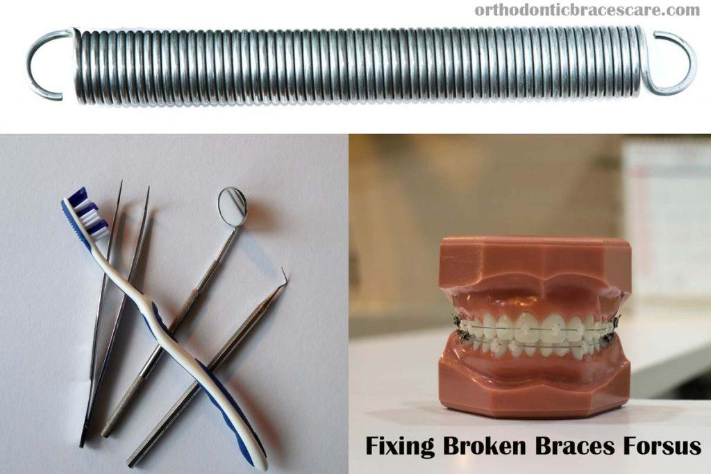 fixing braces broken forsus spring