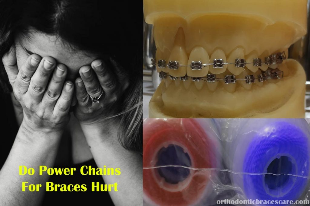 Do Power Chains For Braces Hurt
