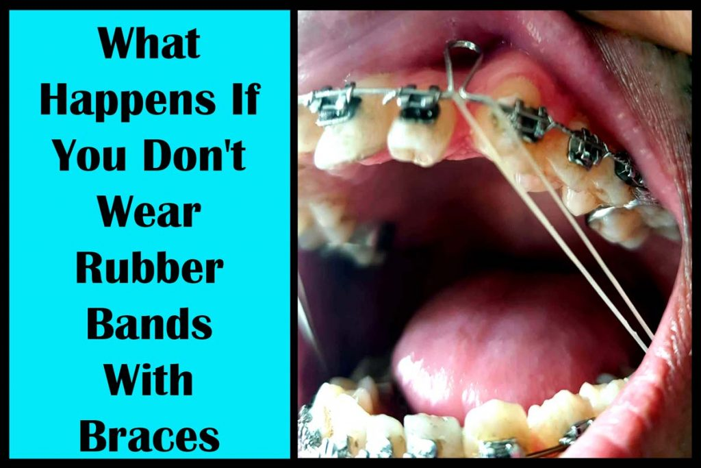 Not wearing rubber bands with braces