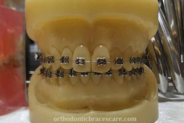 Why Are My Teeth Turning Yellow With Braces | Orthodontic ...