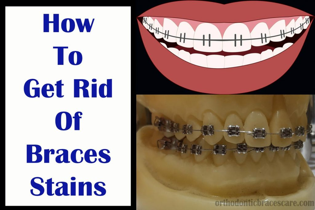 How to get rid of braces stains