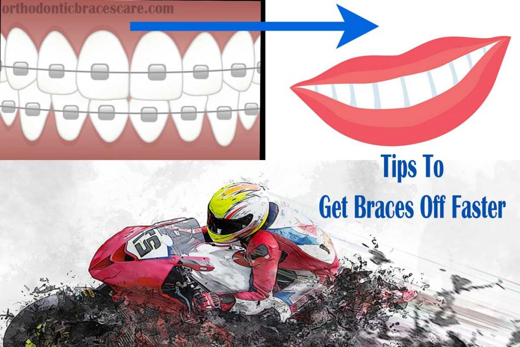 how to get braces off faster