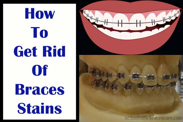 getting rid of braces stains