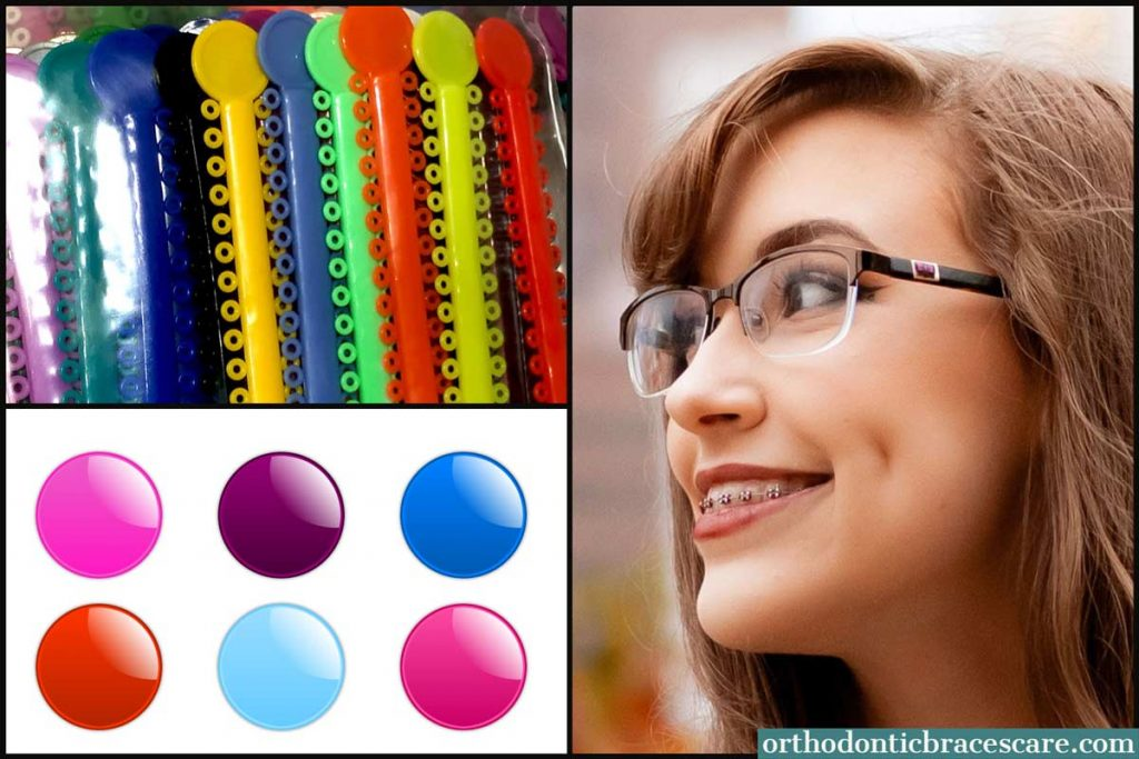 Braces Colors For Girls - choose popular and cute colors