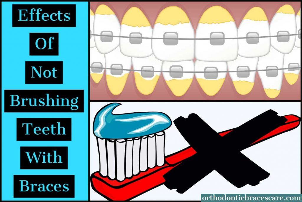 Effects Of Not Brushing Teeth With Braces