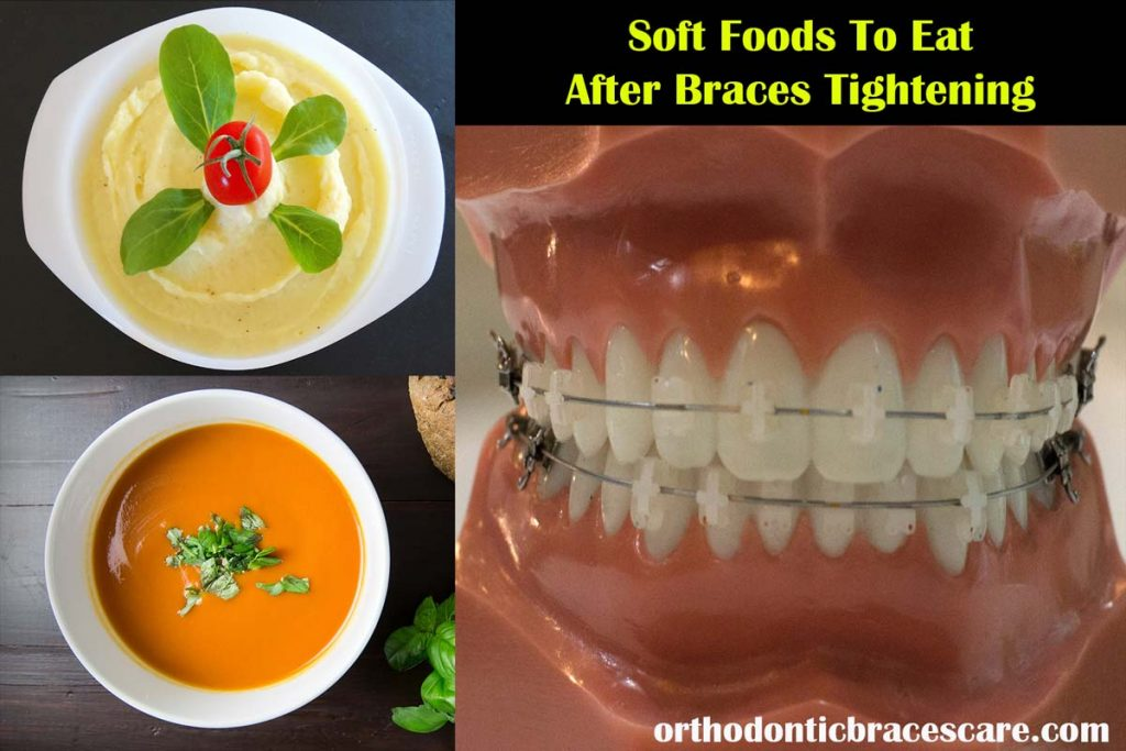 Foods To Eat After Braces Tightening