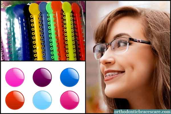 Cute Braces Colors For Girls