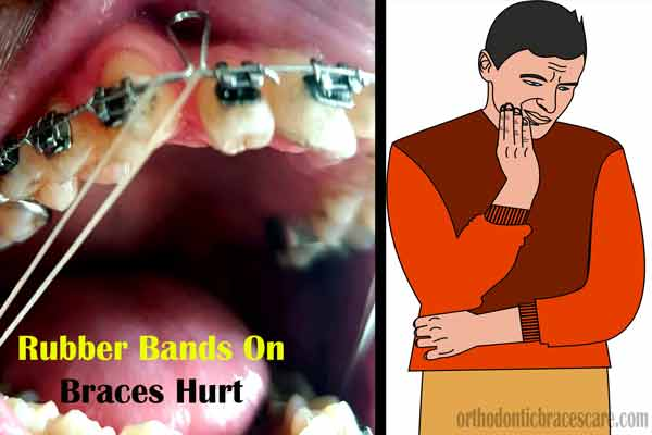 Rubber Bands On Braces Hurt
