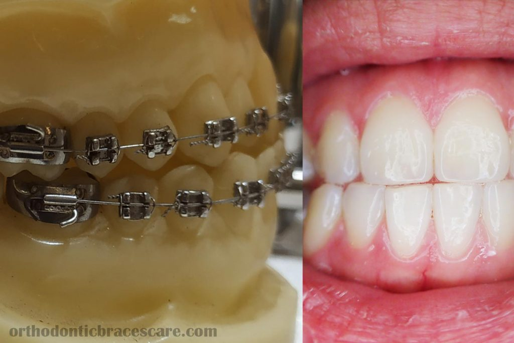 Using whitening Strips With Braces