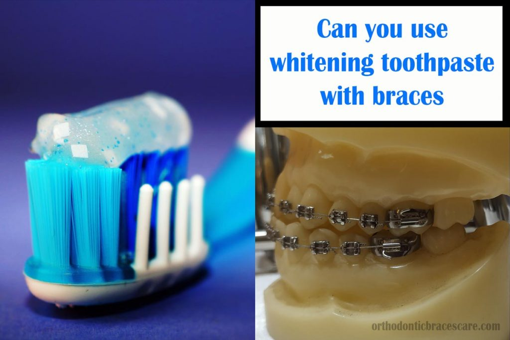 using whitening toothpaste with braces
