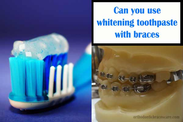 whitening toothpaste with braces