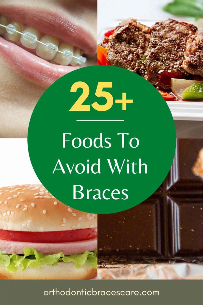 Foods to avoid with braces on teeth