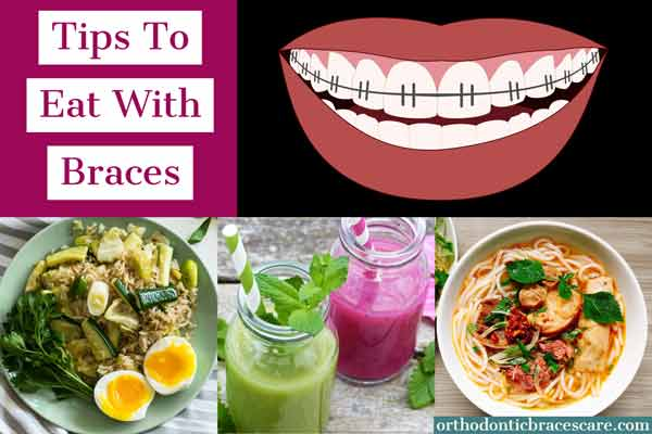 Tips to eat foods with braces