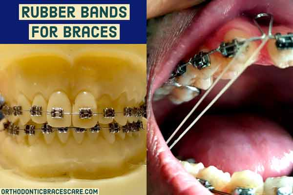 Rubber bands for braces