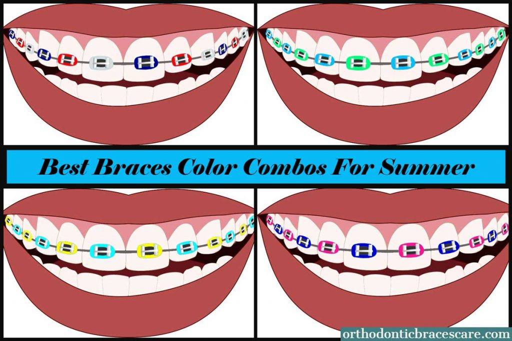 Braces Color Combinations for Summer 2021