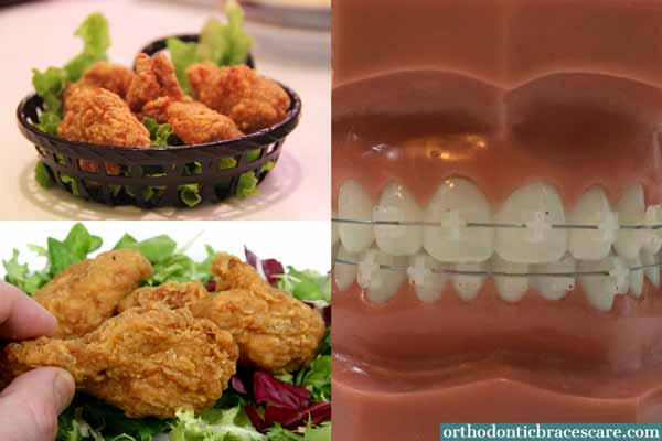 Eating Chicken With Braces