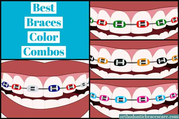Best braces color combos for holidays, events and seasons