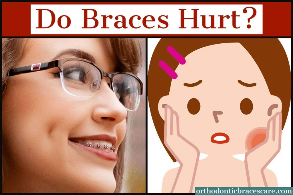 do braces hurt when you get them on