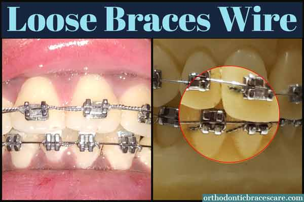 Ways To Fix Loose Wire On Braces