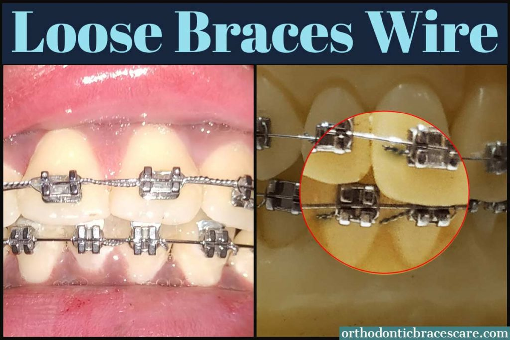 Fixing Loose Wire On Braces