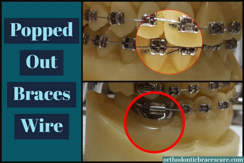 How To Fix Popped Out Braces Wire