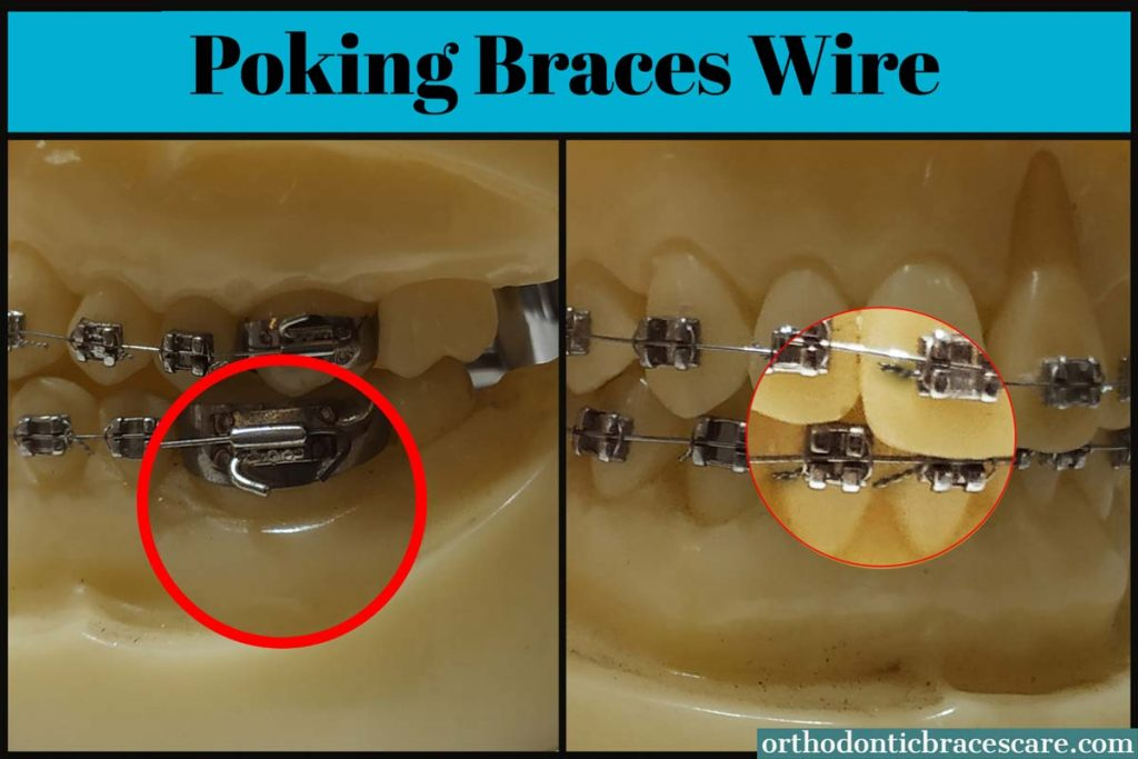 braces wire poking back mouth