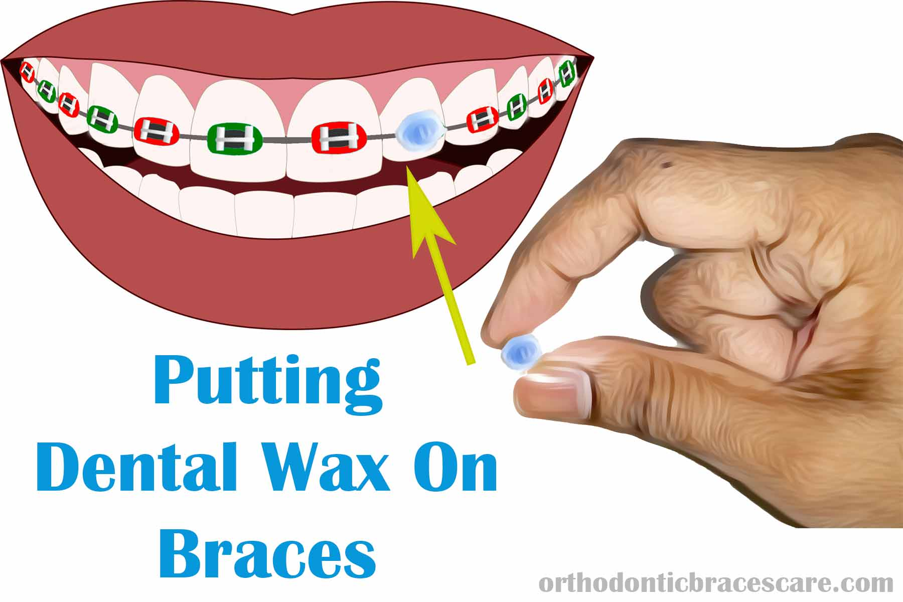 How Apply Dental Wax On Braces: Step-By-Step Guide ...