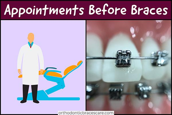 How Many Appointments Before Getting Braces