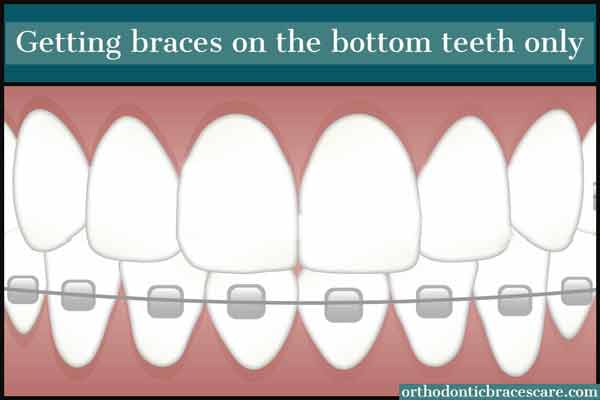 Getting Braces On Bottom Teeth Only