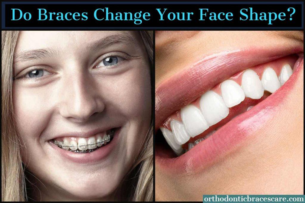 Braces Change Your Face Shape
