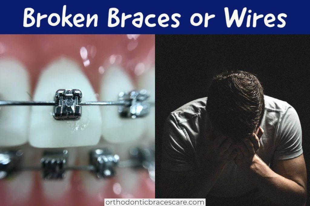 Broken braces or wires: How to fix