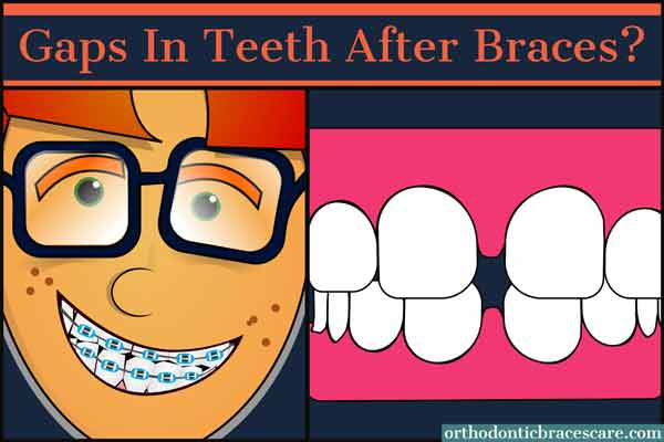 ways to fix gaps in teeth after braces treatment