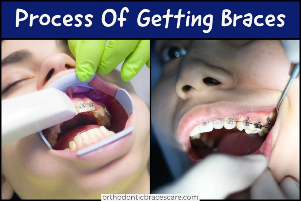 Process Of Getting Braces: Steps with duration