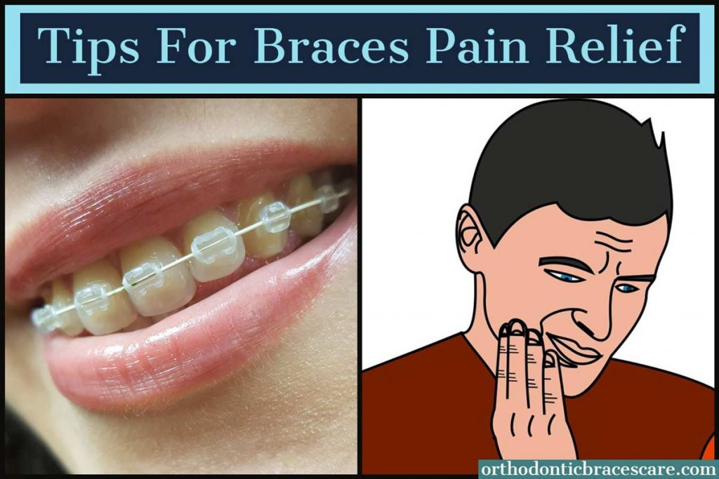 Tips for Braces Pain Relief