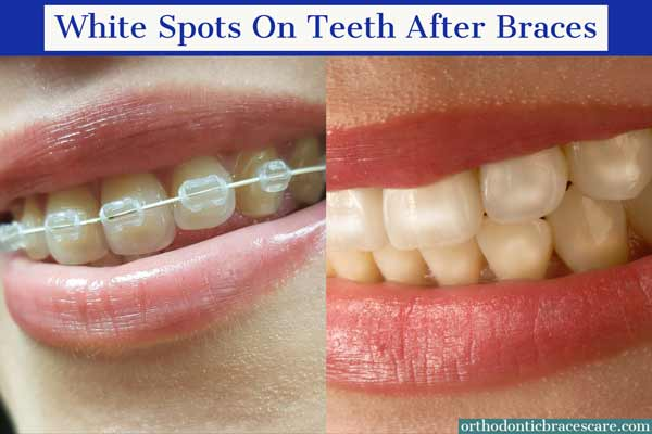 white spot on teeth from braces
