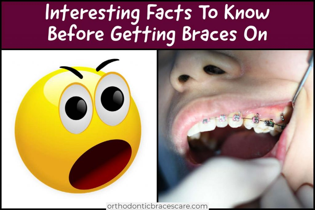 Know Interesting Tips and Facts Before Getting Braces On