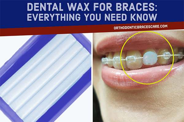 What Is Braces Wax and How To Use