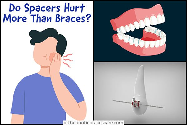Do spacers hurt more than braces