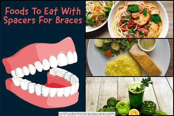 Foods To Eat With Spacers For Braces