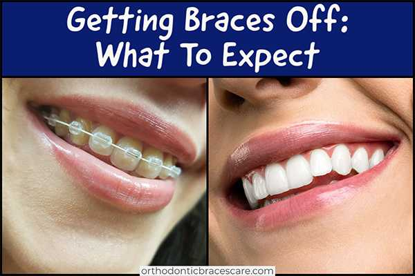 What To Expect When Getting Braces Off With Tips